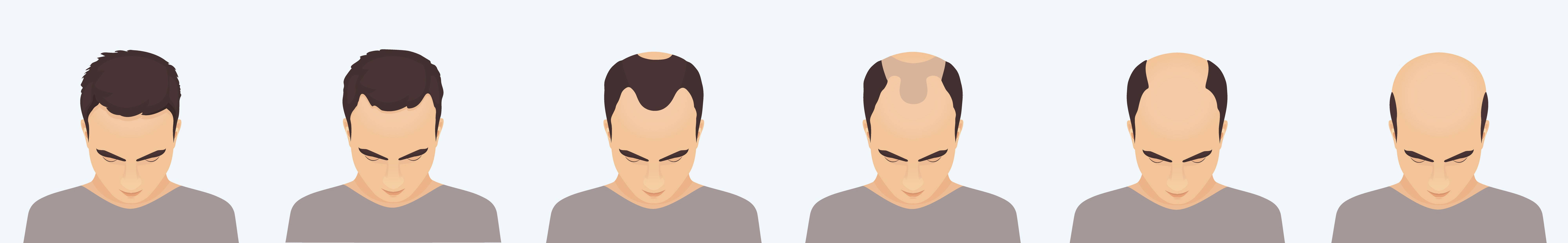 Stage of hair loss