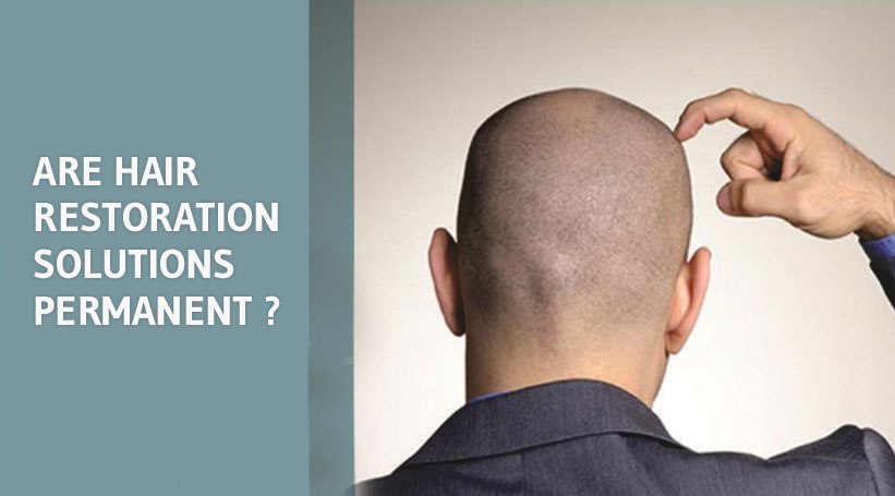 ARE HAIR RESTORATION SOLUTIONS PERMANENT ?