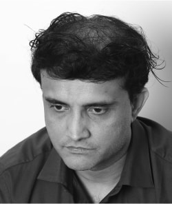 Sourav Ganguly before hair restoration