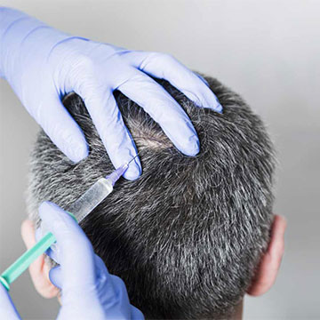 The Success Rate of Hair Transplant Procedure