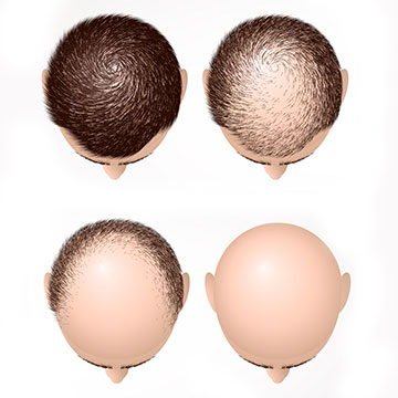 HAIR GROWTH TREATMENT FOR  THE THICK, THE THIN & THE BALD