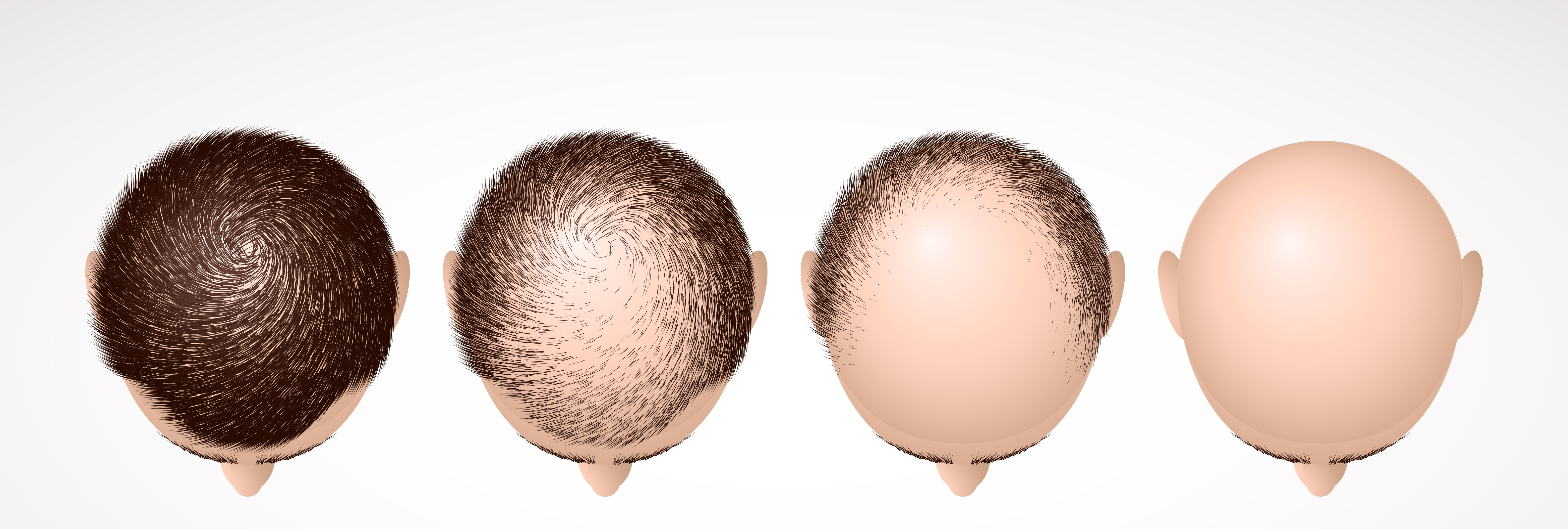 HAIR GROWTH TREATMENT FOR THE THICK, THE THIN & THE BALD!