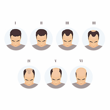 Various Stages of Baldness & How to Treat It