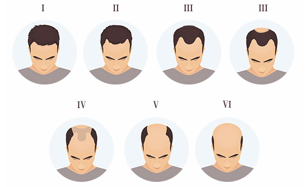 What are the Various Stages of Baldness & How to Combat it?