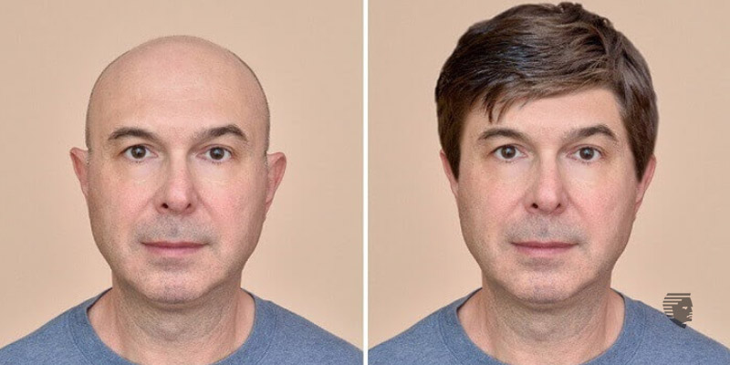 What to expect after the Hair Transplant?