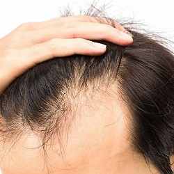 What You Can Do About Men's Thinning Hair?
